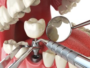 Tooth Dental Implants Merced