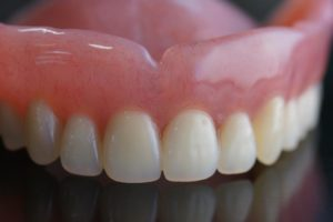 Dentures Merced CA