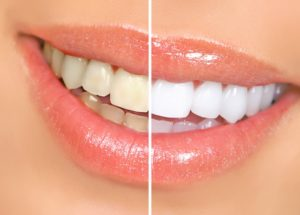 Teeth Whitening in Merced